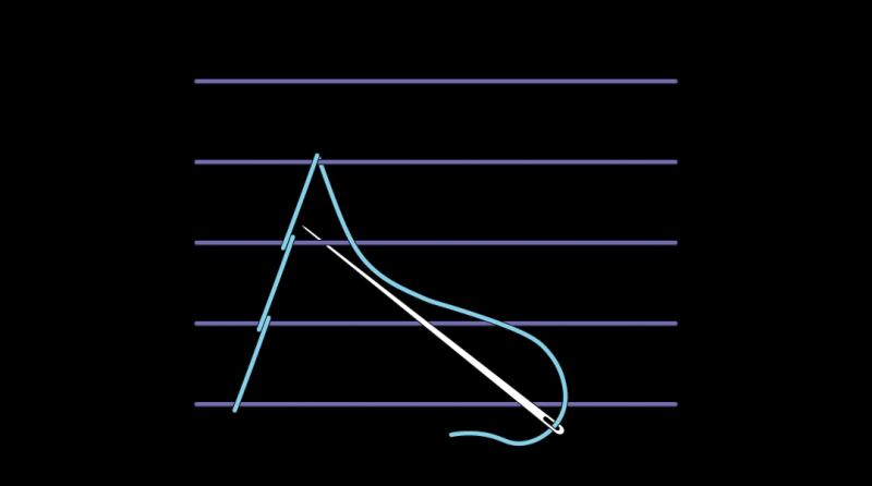 Chevron stem stitch method stage 5 illustration
