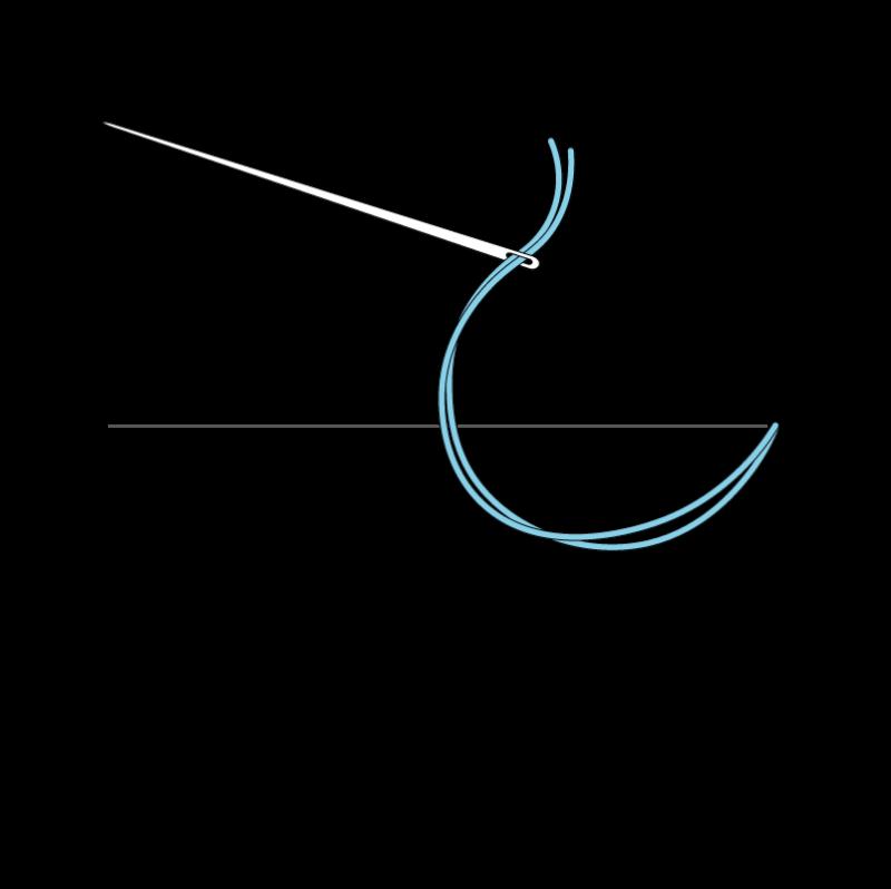 Couching method stage 1 illustration