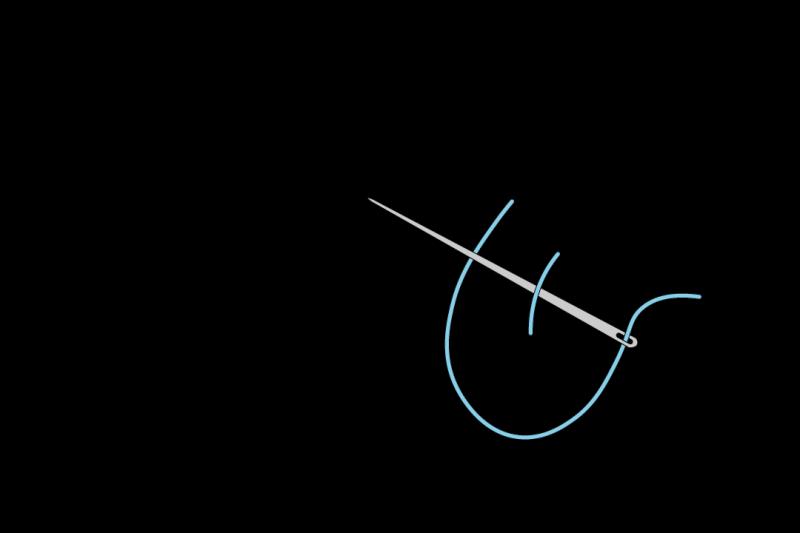 Loop stitch method stage 1 illustration