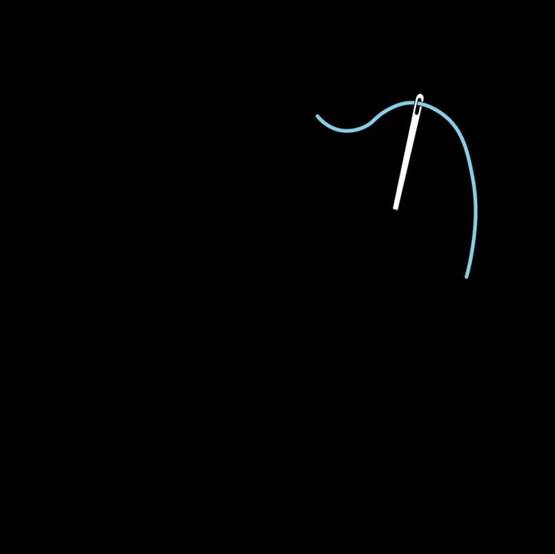 Pearl stitch (variation) method stage 1 illustration