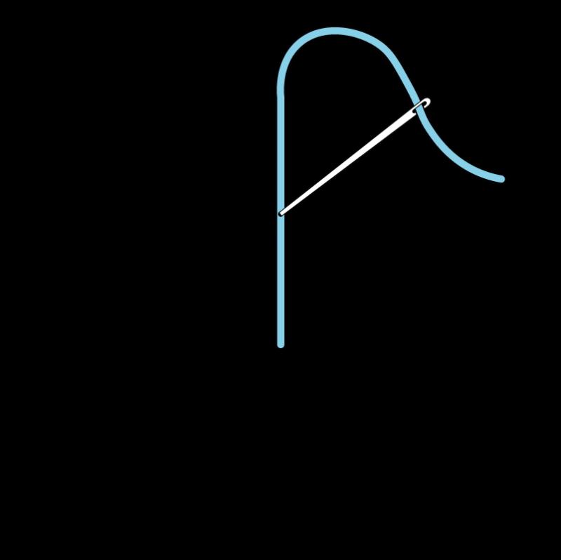 Straight stitch method stage 2 illustration